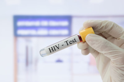 Doctor holding sample blood collection tube with HIV test label in front of the laboratory